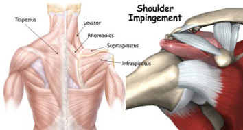 Soft Tissue Considerations For The Athletic Body Shoulder
